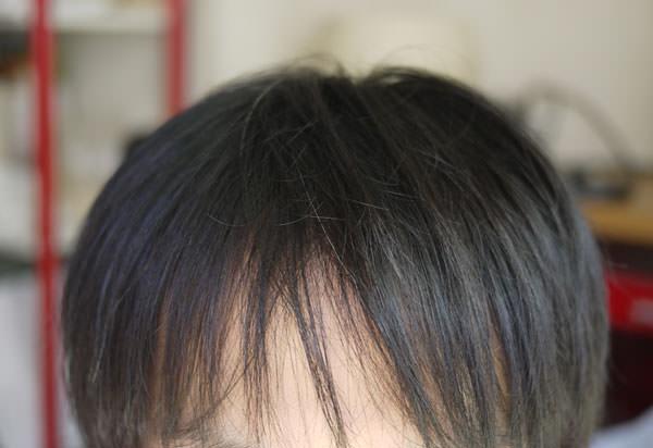現在の頭髪の状態