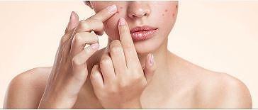 肌荒れ・黒ずみがある女性の画像