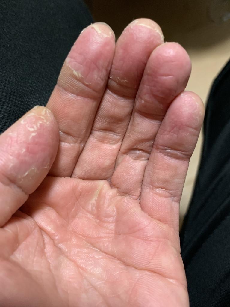局所多汗症にて手の皮がむけた1