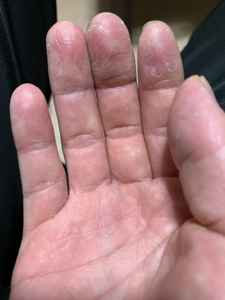 局所多汗症にて手の皮がむけた2