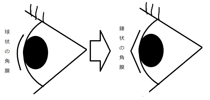 f:id:yuasayo1013:20170706154501p:plain