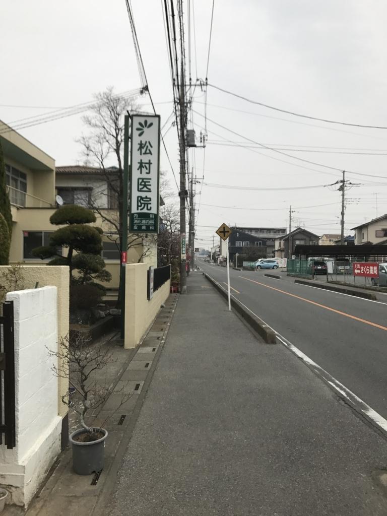 f:id:yubayashi88:20171219131258j:plain:w700:h500