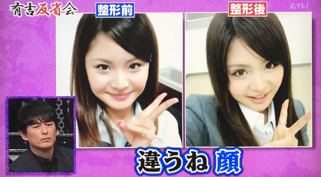 f:id:yuhei2261:20170924142746j:plain