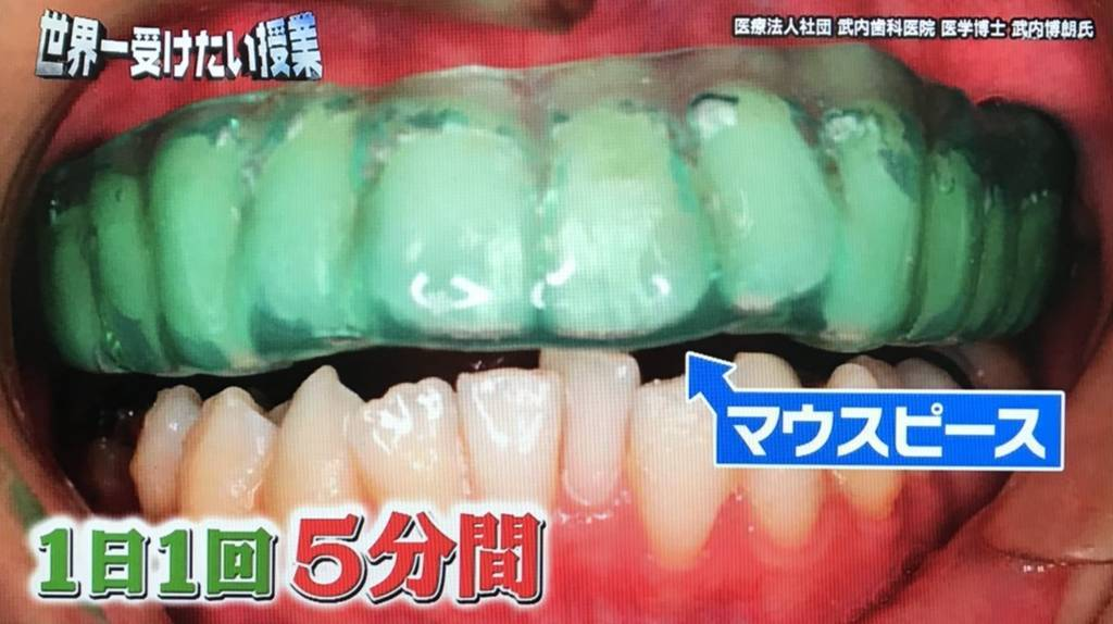 f:id:yuhei2261:20171216200555j:plain
