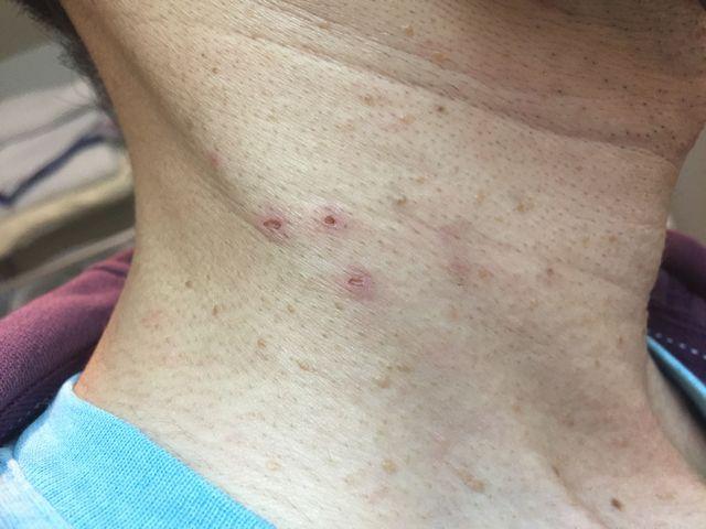 液体窒素による首イボ治療写真