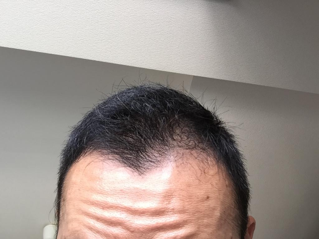 ミノキシジルタブレット1ヶ月目の初期脱毛