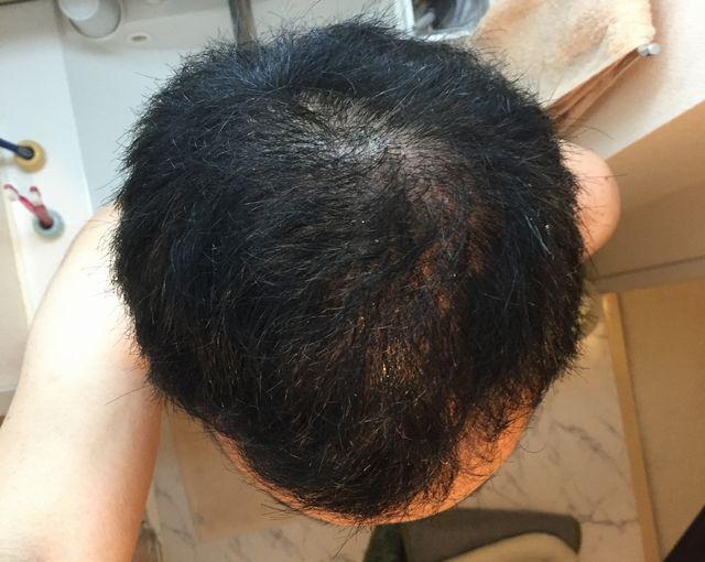 頭頂部の初期脱毛