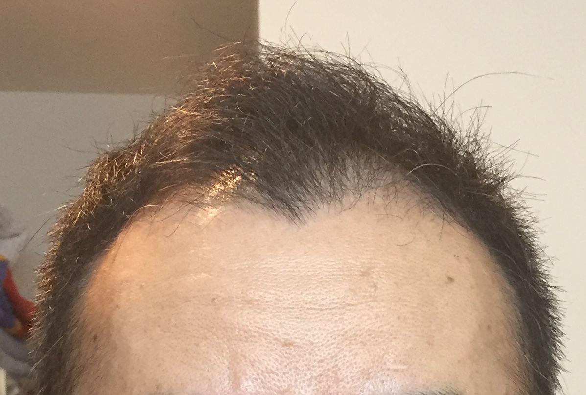 初期脱毛正面