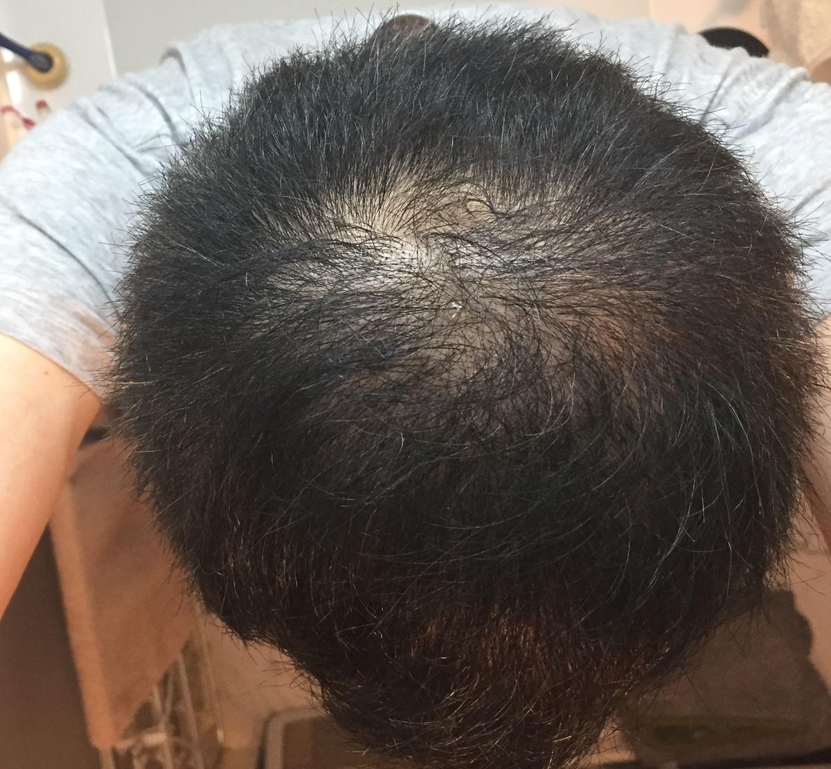ハゲ頭頂部