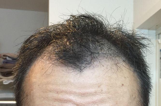 ミノキシジルタブレット初期脱毛2ヶ月