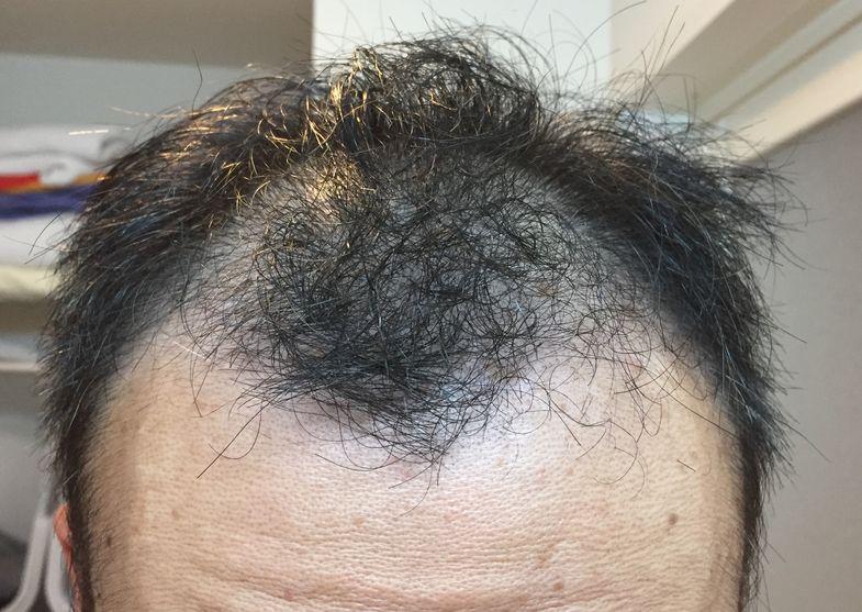 初期脱毛2ヶ月目