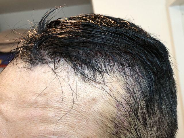 M字はげの植毛