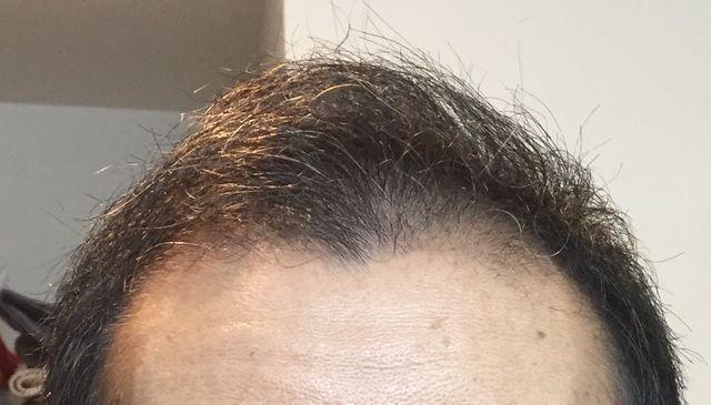 初期脱毛3ヶ月