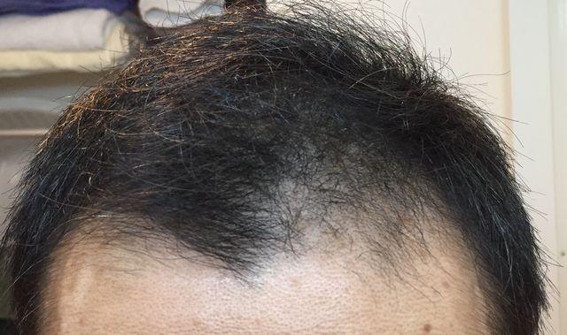 4ヶ月目正面の頭髪
