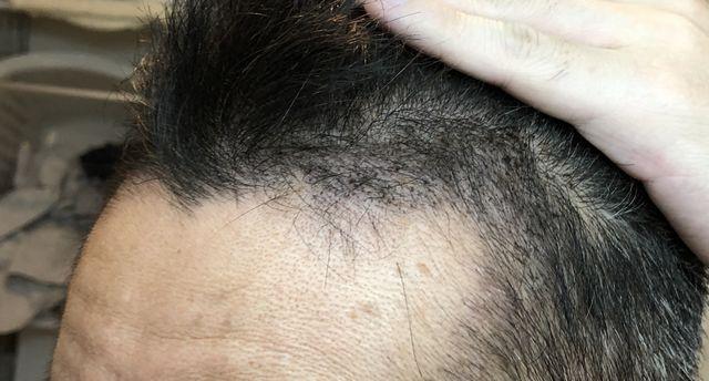 植毛1週間後左側