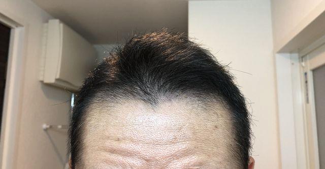 2ヶ月目の頭髪正面