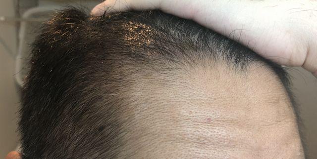植毛3ヶ月経過画像