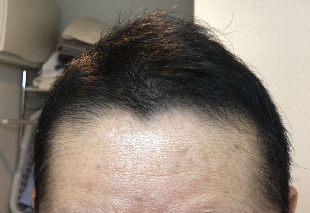 植毛3ヶ月経過画像正面