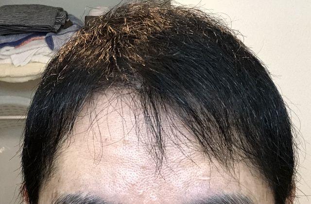 植毛半年後