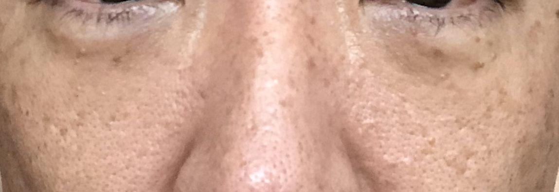 目の下のたるみ手術1週間経過