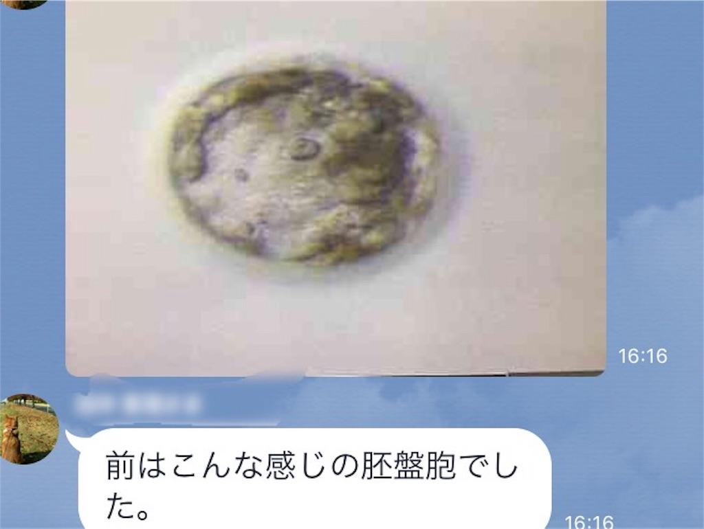 f:id:yuichiro1900:20170218211651j:image