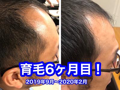 f:id:yuichisatoblog:20200529195410p:plain