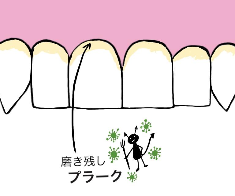 f:id:yuka-tama:20200409185240j:plain