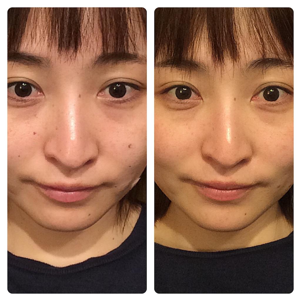 f:id:yuki_kuroha:20190205094306p:image