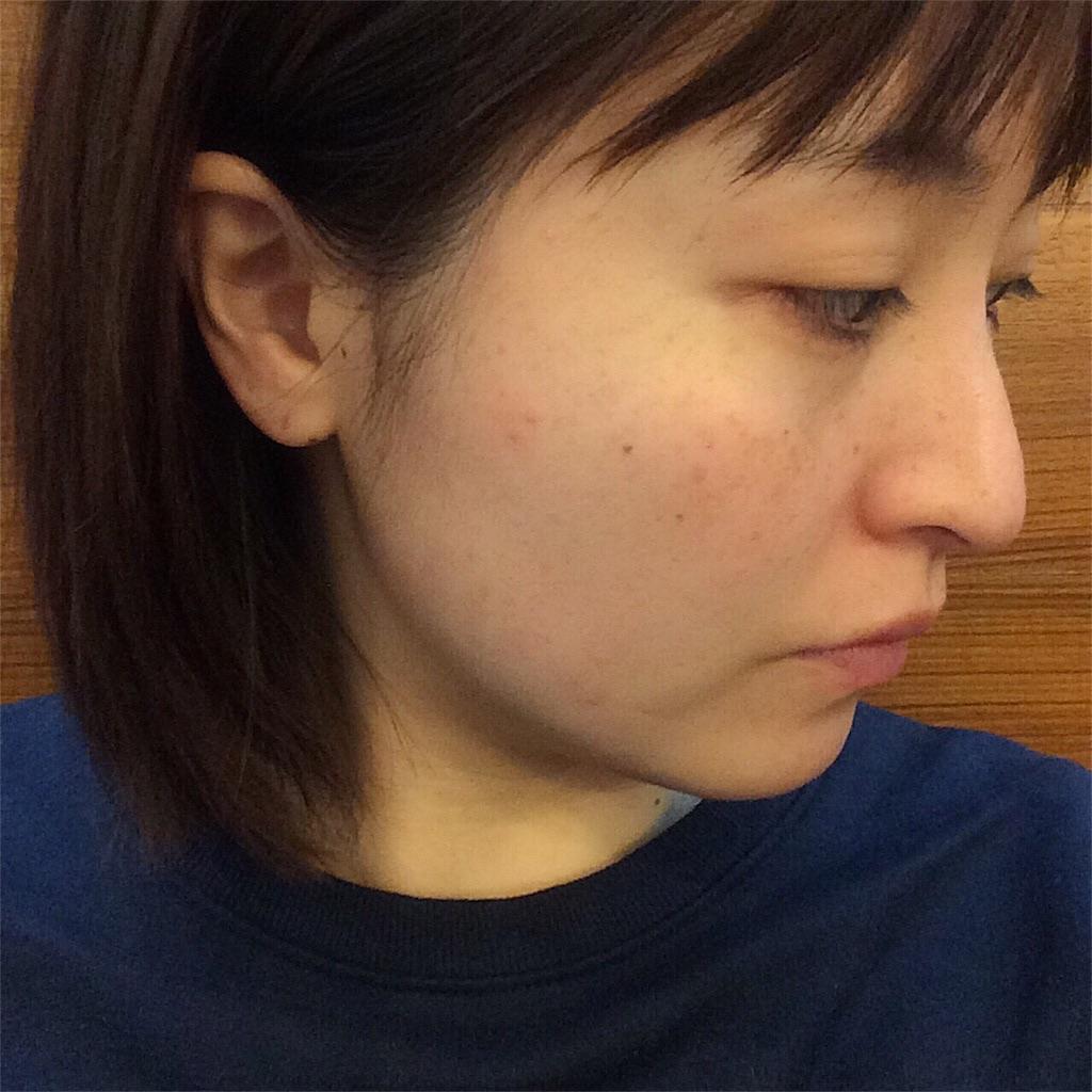 f:id:yuki_kuroha:20190305164302j:image