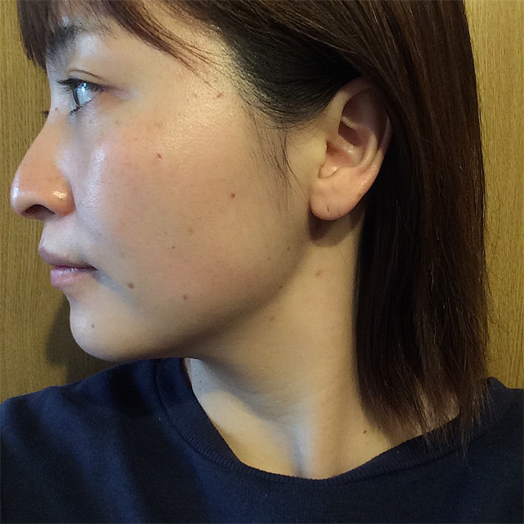 f:id:yuki_kuroha:20190305164833j:image