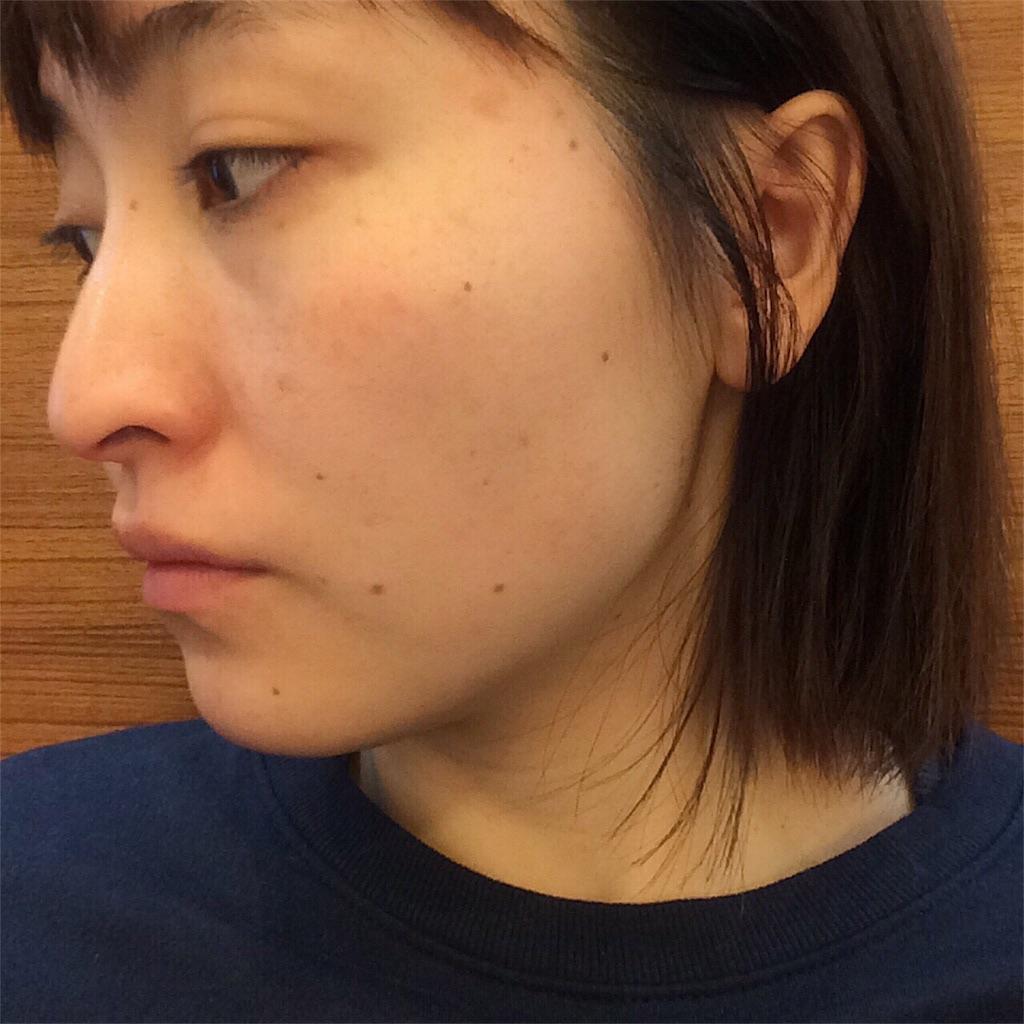 f:id:yuki_kuroha:20190305164923j:image
