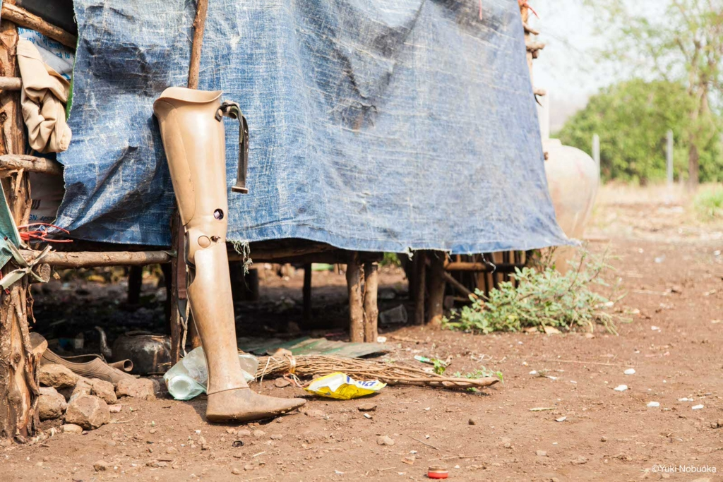 地雷被害者が使用する義足 photo by Yuki Nobuoka