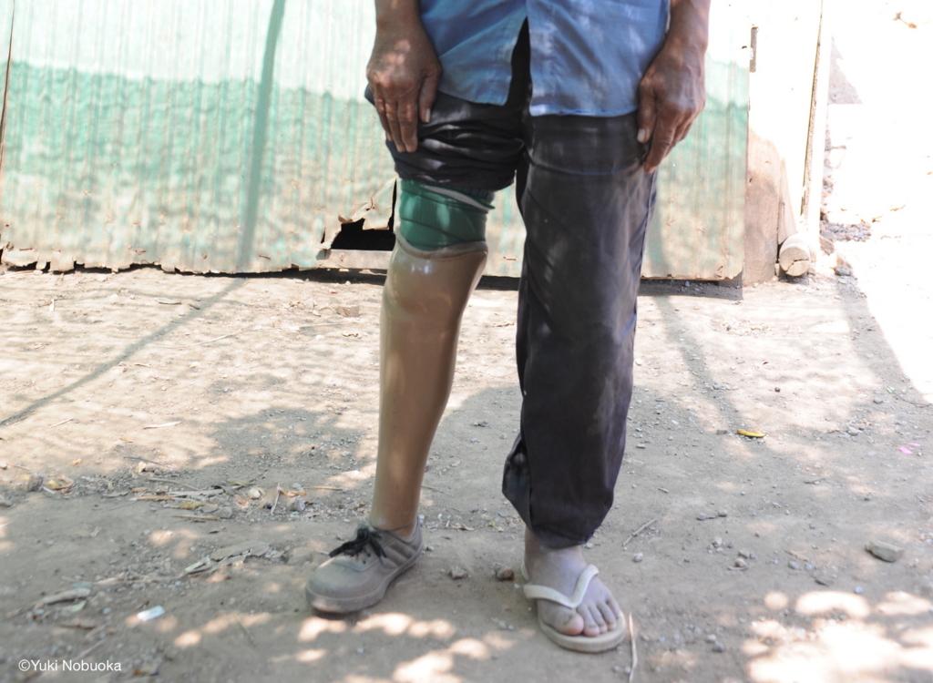 地雷によって右足を失った男性 photo by Yuki Nobuoka
