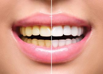 歯の色が白くなった!