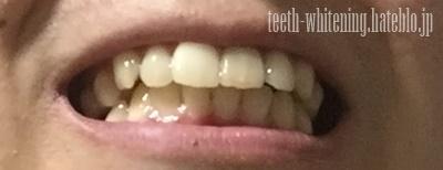 歯の色Before