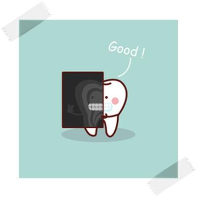 歯のレントゲンイラスト