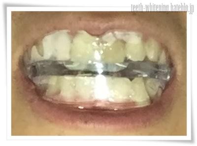 歯にホワイトニングトレイを装着したところ