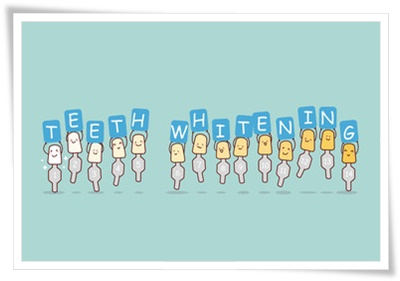 歯の色のカラーガイド