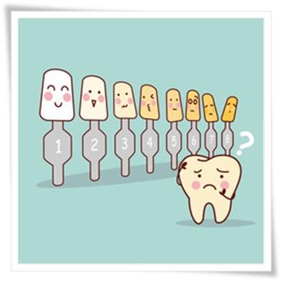 歯のカラーガイドイラスト