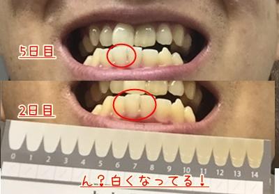 f:id:yukinosetsuna:20160812182047j:plain