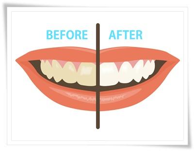 歯の白さビフォアアフター
