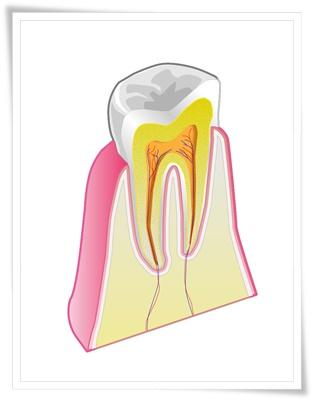 歯の断面図イラスト