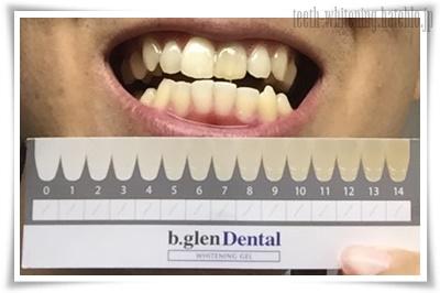 歯の白さ変化