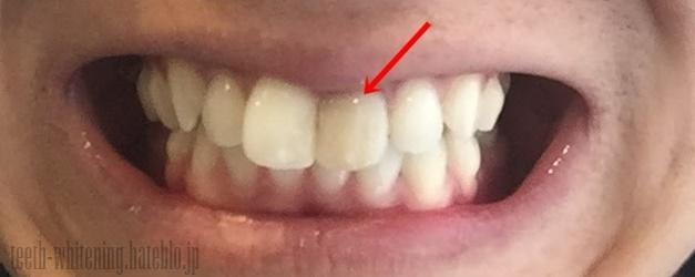 壊死した歯