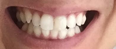 現在の歯の色