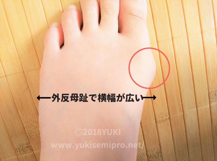 外反母趾の足の画像