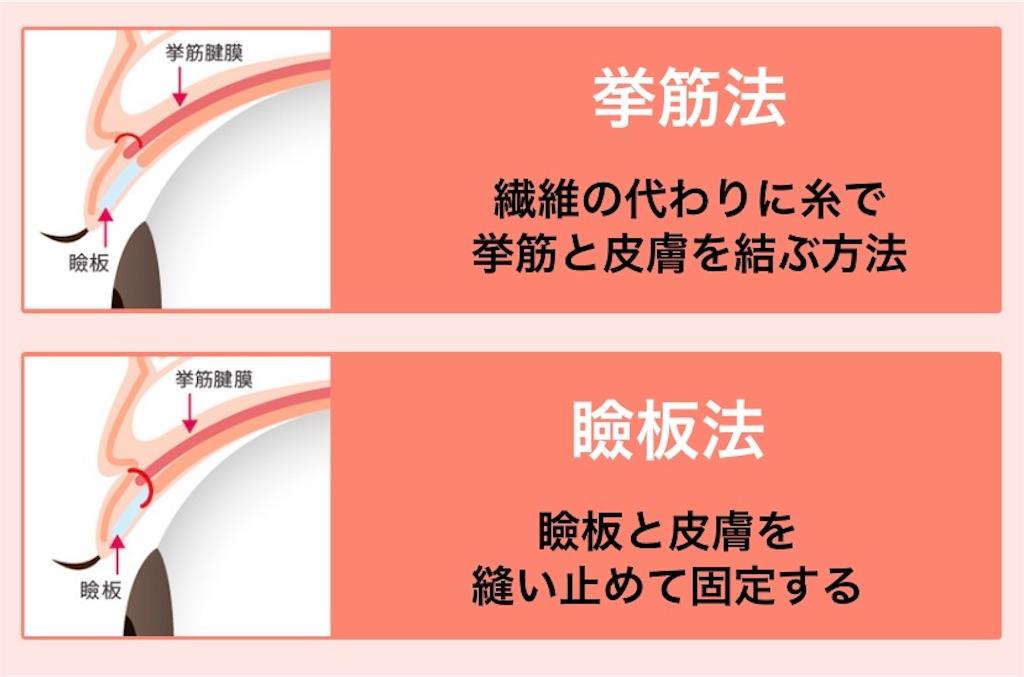 f:id:yukiyukiyuki625:20210113124727j:image