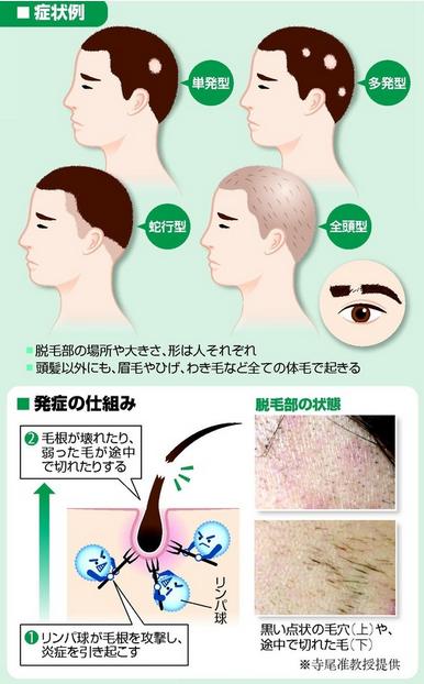 f:id:yukukawa-no-nagare:20200530070256p:plain