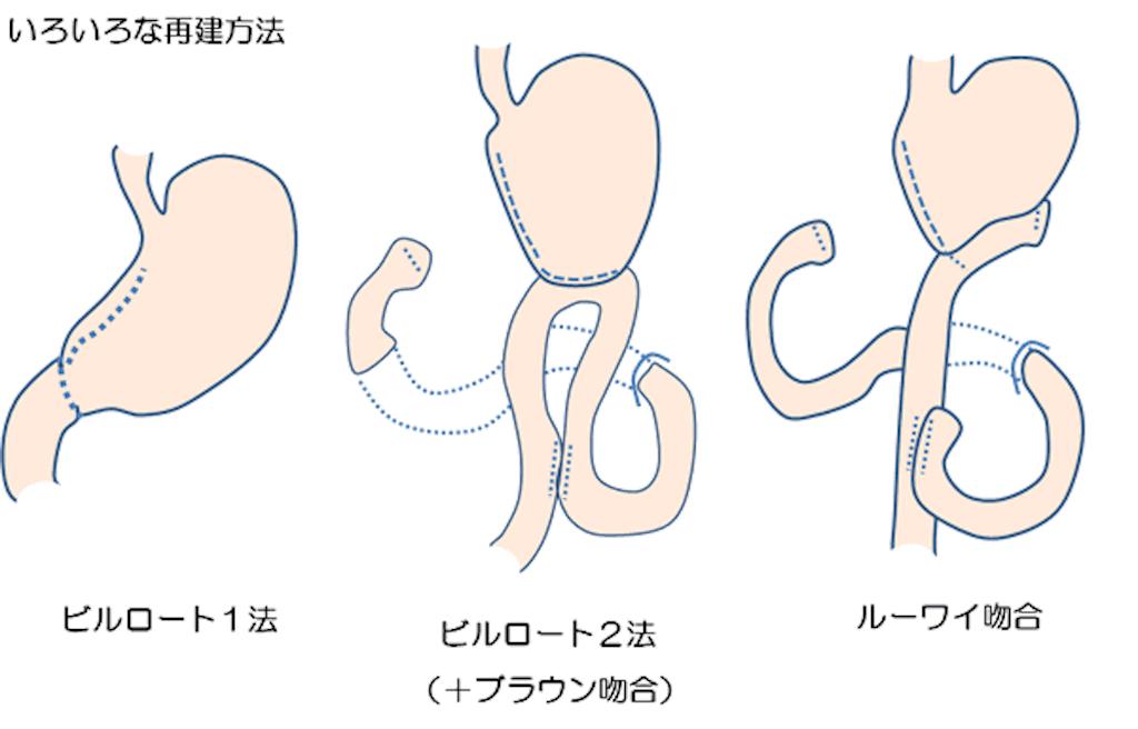 f:id:yukuma0721:20190605131602p:image