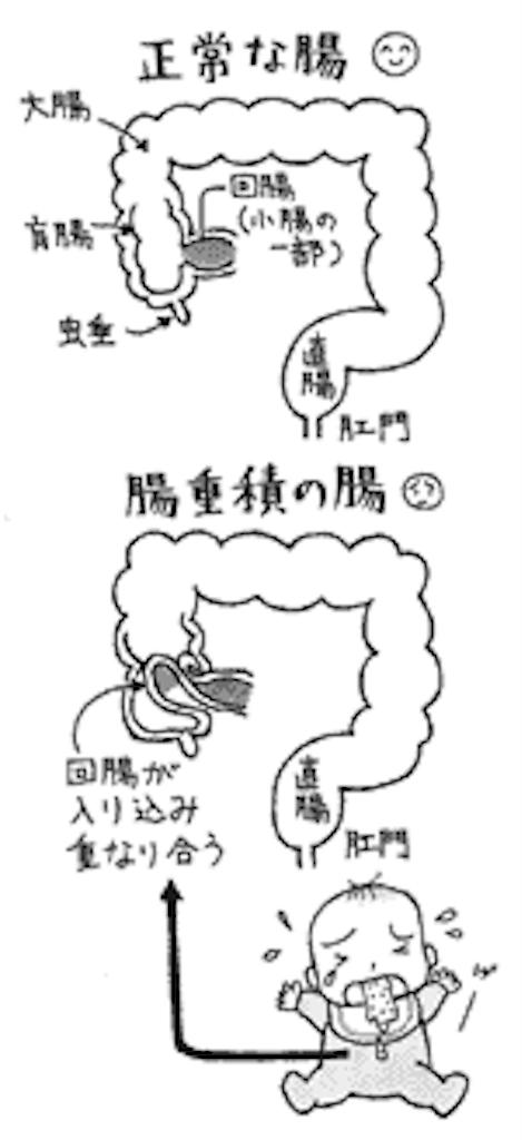 f:id:yukuma0721:20190605135330p:image